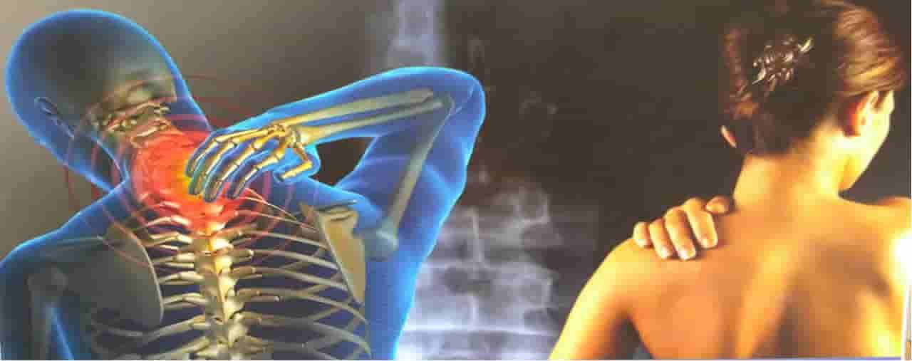 immagine fibromialgia